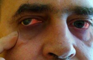 Moje marzenie - Operacja oka, jego rehabilitacja i zakup okularów